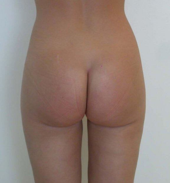 Männer brust nachher op vorher Fettabsaugung brust